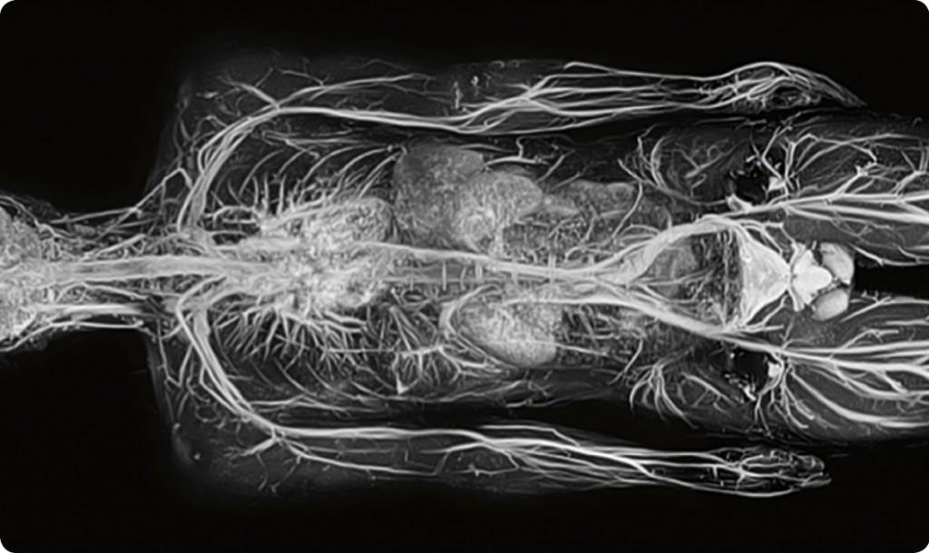 MRI image 2